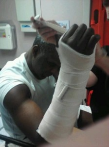 Charles-Oakley-Broken-Arm